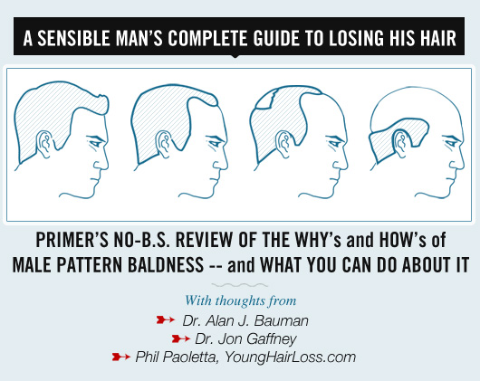 A Sensible Man's Complete Guide to Losing His Hair
