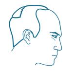 Choosing a Hair Transplant Surgeon