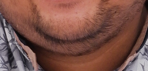 close up of beard stubble on double chin